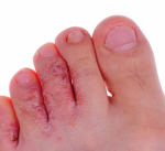 Treating Athlete's Foot with Essential Oils